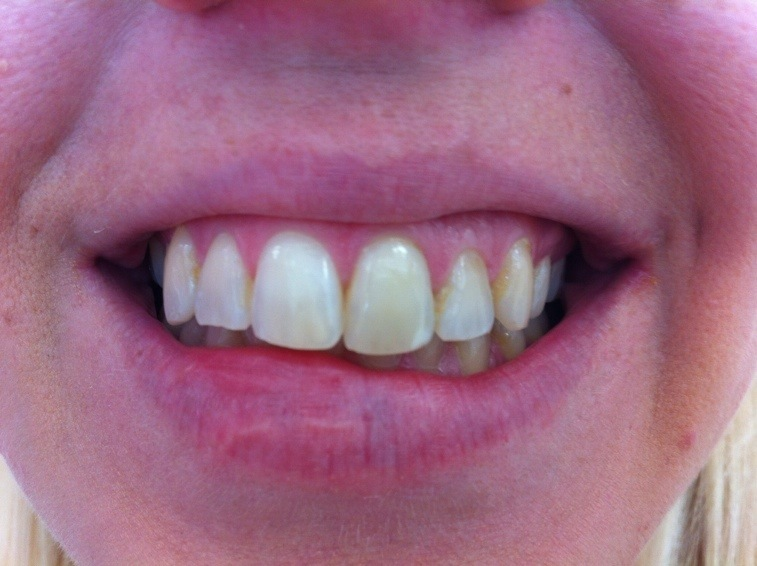 gul fläck på tanden